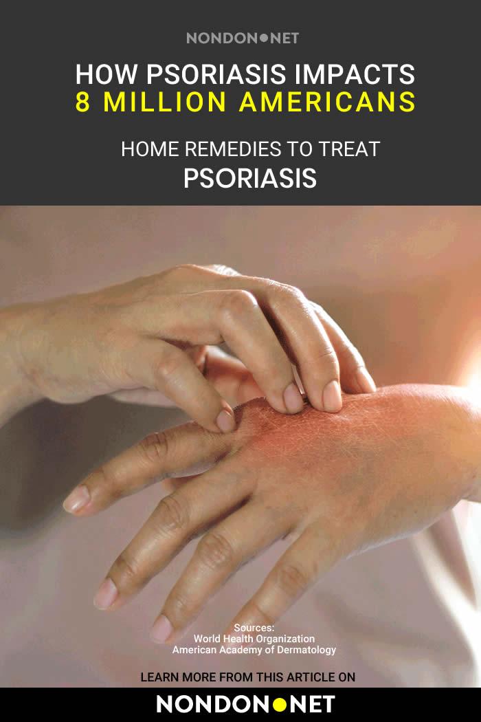 9 Herbs and Home Remedies to Treat Psoriasis Naturally #Herbs #HomeRemedies #HomeRemedy #HomeRemediestoTreatPsoriasis #Psoriasis #PsoriasisTreatment #PsoriasisReedies #PsoriasisRemedy #diabetes #BloodPressure #MoodDisorders #HerbalRemedies #HerbalRemedy #PsoriasisSymptoms #oatmeal #bakingsoda #OregonGrape #Mahonia #inflammation #oliveoil #Epsomsalts #turmeric #Applecidervinegar #Applecider #NPF #AloeVera #AloeVeraGel