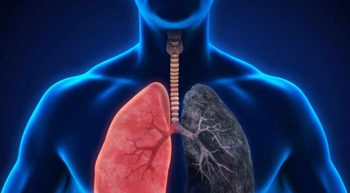 Current Smokers, People With COPD At High COVID-19 Risk