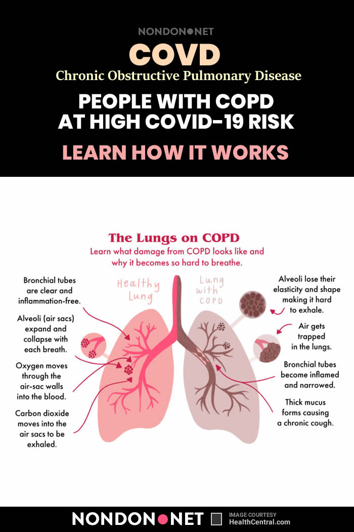 Current Smokers and People With COPD (Chronic obstructive pulmonary disease) at High COVID-19 Risk #Smokers #Smoker #COVID19 #Corona #CoronaVirus #COVID19Risk #EuropeanRespiratorySociety #COPDpatients #COPD #ACE2 #COVID19infections #UniversityofBritishColumbia #UBC #BritishColumbia #enzyme
