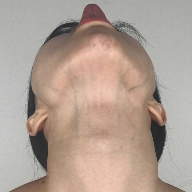 """Slim Your """"Tech Neck"""" Double Chin"""